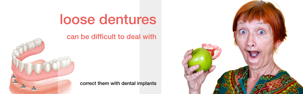 Loose dentures can be fixed with dental implants