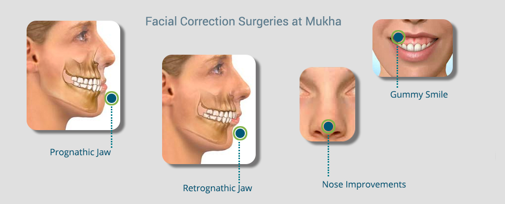 Mukha Facial Surgery & Dental Implant Center